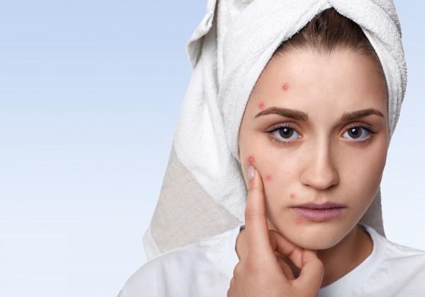 Vyrážky na tvári v dospelosti signalizujú, že robíte niečo ZLE. Čo je ich spúšťačom a ako sa ich zbaviť?