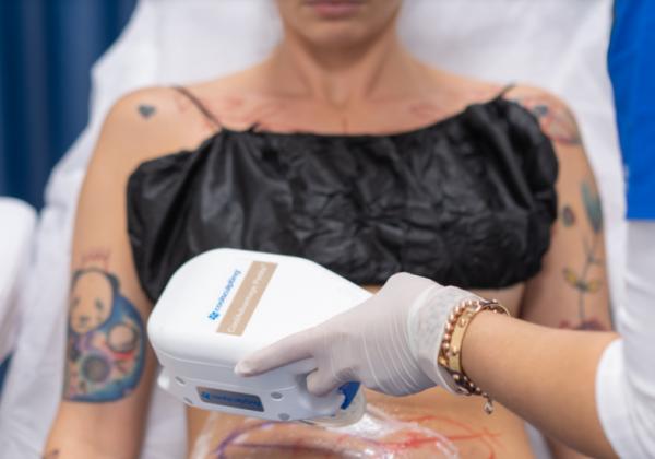 Estetická medicína dneška: Naháňa vám strach injekcia s ihlou či skalpel? Už nemusí!
